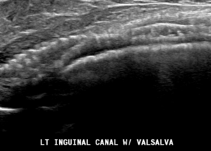 Mesh seen in the inguinal canal
